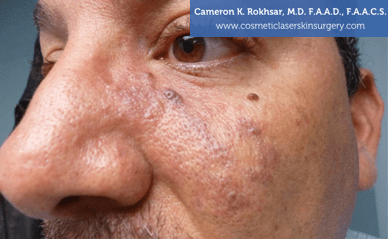 Birthmarks. After treatment photo - male, oblique view, patient 3