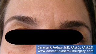Botox. After Treatment photo, front view, female patient 7