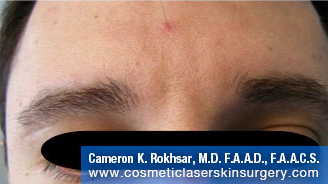 Botox. After Treatment photo, front view, male patient 6