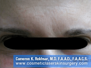 Botox. After Treatment photo, front view, male patient 3