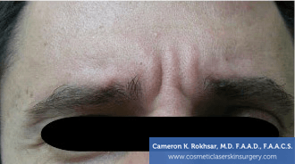 Botox. Before Treatment photo, front view, male patient 6