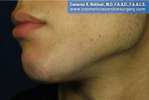 Non-Surgical Chin Job - After Treatment photo, male - left side view, patient 6