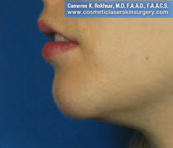 Non-Surgical Chin Job - After Treatment photo, female - left side view, patient 7