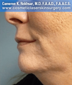 Non-Surgical Chin Job - After Treatment photo, female - left side view, patient 5