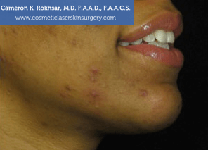 Non-Surgical Chin Job - After Treatment photo, male - right side view, patient 8