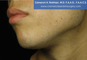 Non-Surgical Chin Job - Before Treatment photo, male - left side view, patient 6