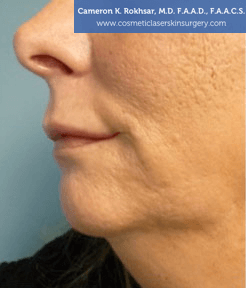 Non-Surgical Chin Job - Before Treatment photo, female - left side view, patient 5