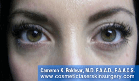 Non-Surgical Eye Lift. After Treatment Photo - front view, female patient 9