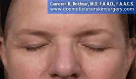 Eyelid Rejuvenation - After Treatment Photo - patient 7