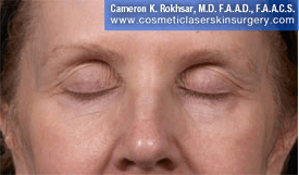 Eyelid Rejuvenation - After Treatment Photo - patient 9