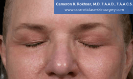 Eyelid Rejuvenation - Before Treatment Photo - patient 7