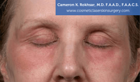 Eyelid Rejuvenation - Before Treatment Photo - patient 9