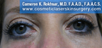 Non-Surgical Eye Lift. After Treatment Photo - front view, female patient 11