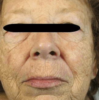 Fraxel - Before Treatment photo, female, front view - patient 24