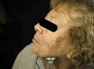 Fraxel - Before Treatment photo, female,left side view - patient 25