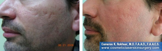 Male face, Before and After Fraxel Treatment photo, restore cheek - left side, oblique view - patient 1