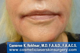 Lip Enhancement - After Treatment Photo - patient 4