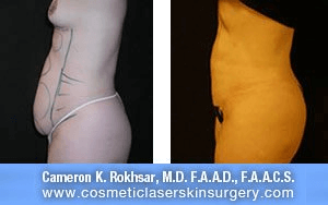 Liposculpture Liposuction - Before and After Treatment photos, left side view, female patient 13