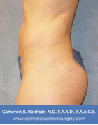 Liposculpture Liposuction - After Treatment photos, left side view, female patient 14