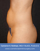 Liposculpture Liposuction - Before Treatment photos, left side view, female patient 14