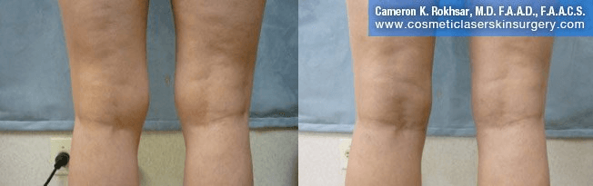 Liposuction - Before and After Treatment Photos, legs, back view - female patient 9