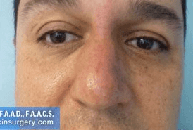 Non Surgical Nosejob - After treatment photo, male, front view, patient