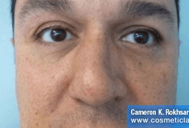 Non Surgical Nosejob - Before treatment photo, male, front view, patient