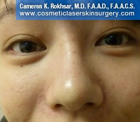 Young boy face, After: Non Surgical Nosejob Treatment - front view, patient 1