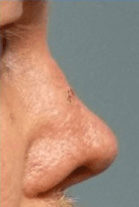 Non Surgical Nosejob - After treatment photo, male, right side view, patient 40