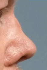 Non Surgical Nosejob - Before treatment photo, male, right side view, patient 40
