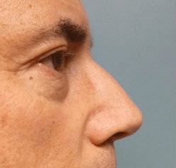 Non Surgical Nosejob - Before treatment photo, male,right side view, patient 16