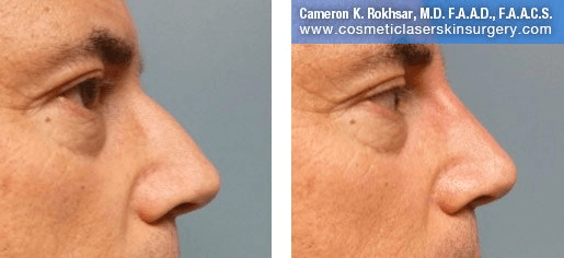 Non Surgical Nosejob - Before and After treatment photo, male,right side view, patient 16