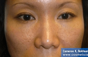 Non Surgical Nosejob - Before treatment photo, female, front view, patient 38