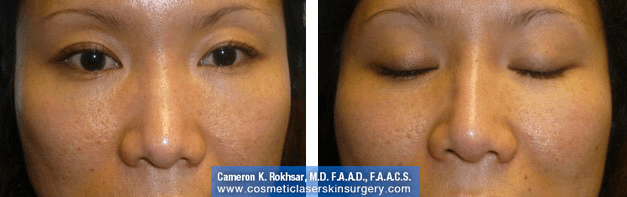 Non Surgical Nosejob - Before and After treatment photo, female,front view, patient 17