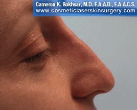 Non Surgical Nosejob - After treatment photo, female, right side view, patient 37
