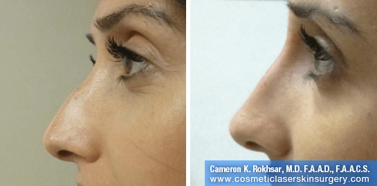 Non Surgical Nosejob - Before and After treatment photo,left side view, female patient 19