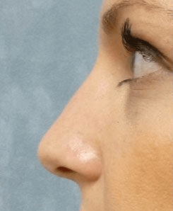 Non Surgical Nosejob - Before treatment photo, female, left side view, patient 35