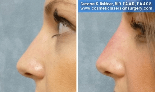 Non Surgical Nosejob - Before and After treatment photo, female, left side view, patient 35