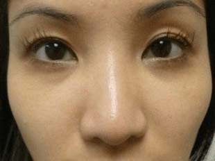 15 minute nosejob - Before treatment photo, female, front view, patient 41