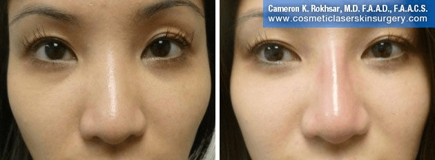 Non Surgical Nosejob - Before and After treatment photo, female, front view, patient 34