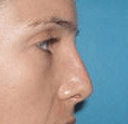 Non Surgical Nosejob - After treatment photo, female, right side view, patient 33