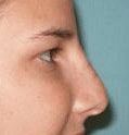 Non Surgical Nosejob - After treatment photo, female, right side view, patient 32