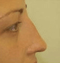 Non Surgical Nosejob - After treatment photo, female, right side view, patient 31