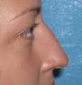 Non Surgical Nosejob - Before treatment photo, female, right side view, patient 31