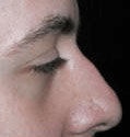 Non Surgical Nosejob - Before treatment photo, male, right side view, patient 48