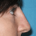 Non Surgical Nosejob - After treatment photo, female, right side view, patient 27