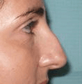 Non Surgical Nosejob - Before treatment photo, female, right side view, patient 27