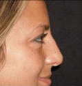 Non Surgical Nosejob - Before and After treatment photo, female, right side view, patient 25