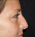 Non Surgical Nosejob - Before treatment photo, female, right side view, patient 25