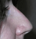 Non Surgical Nosejob - After treatment photo, female, right side view, patient 24